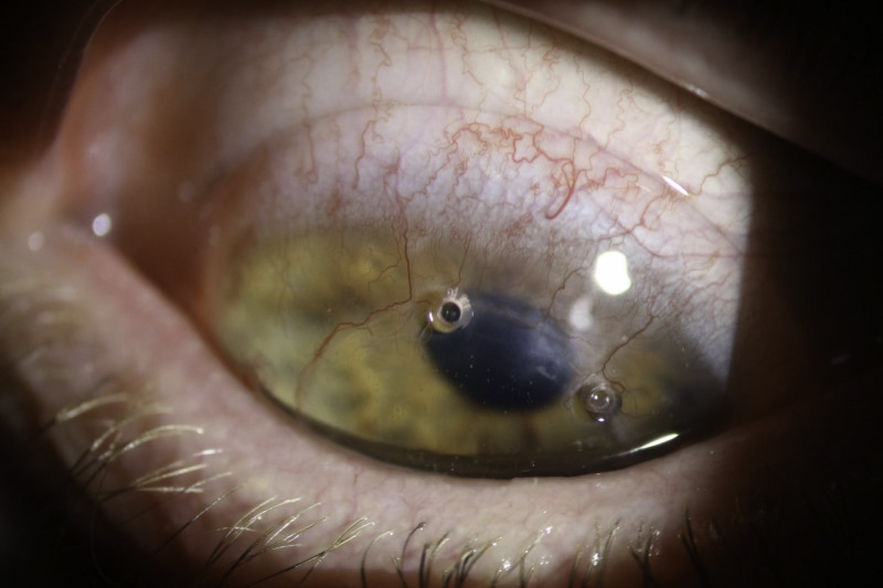 RGPs and corneal graft patients